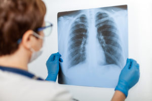 A doctor holds up the results of a chest x-ray against a lighted background.